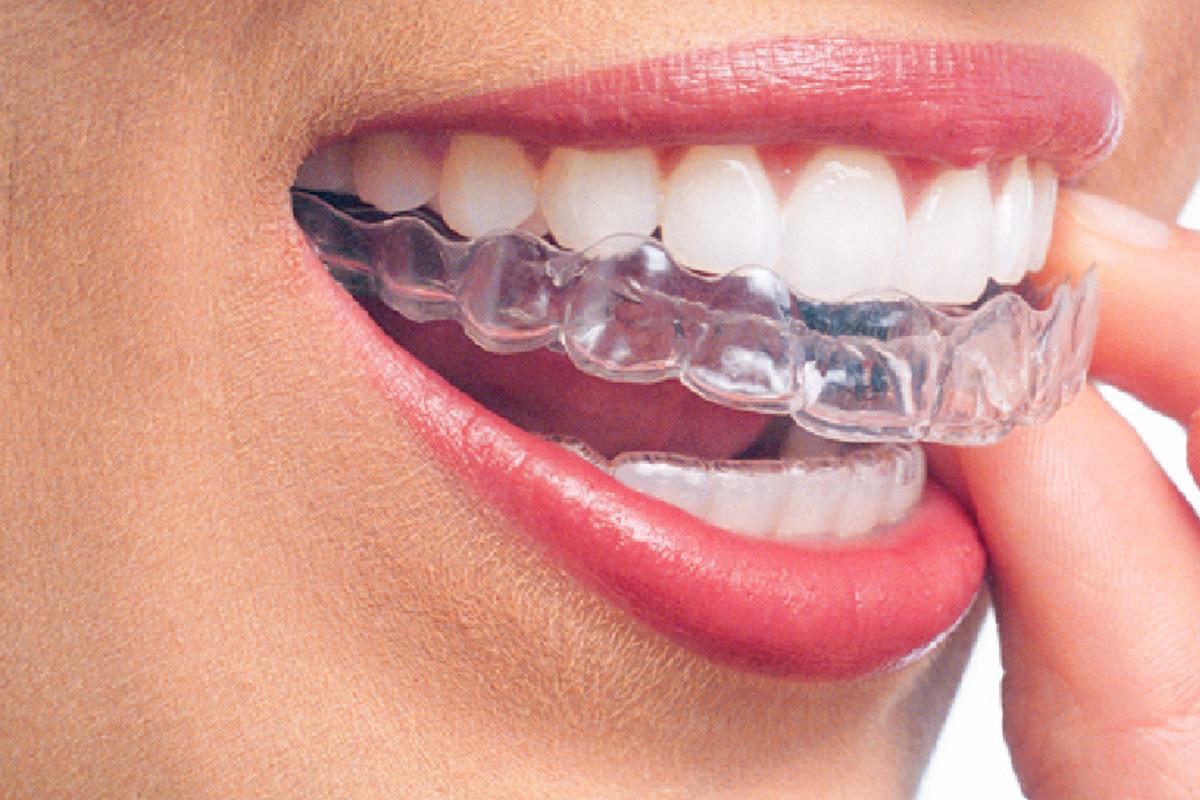 Przeźroczyste aparaty ortodontyczne
